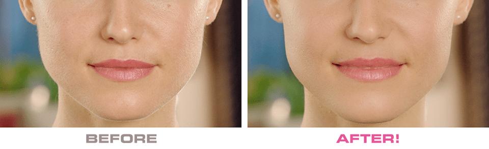 Uređaj za piling lica